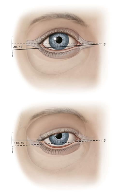 revision blepharoplasty