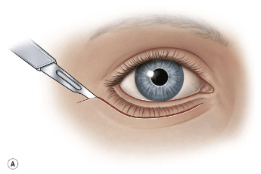 illustration of an blephaoplasty surgical incision
