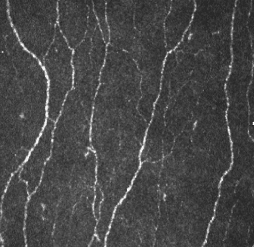 Confocal microscopy of the corneal nerve plexus