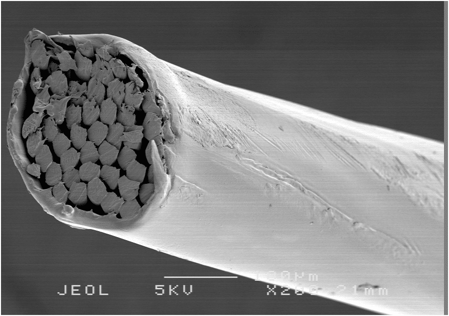 electron microscopic image of a brow suspension material