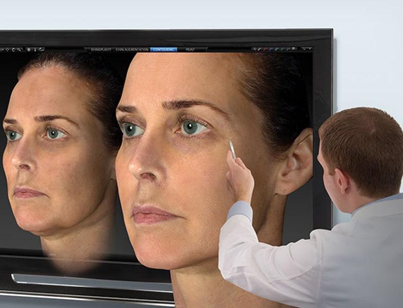 3D facial imaging using VECTRA M3 system