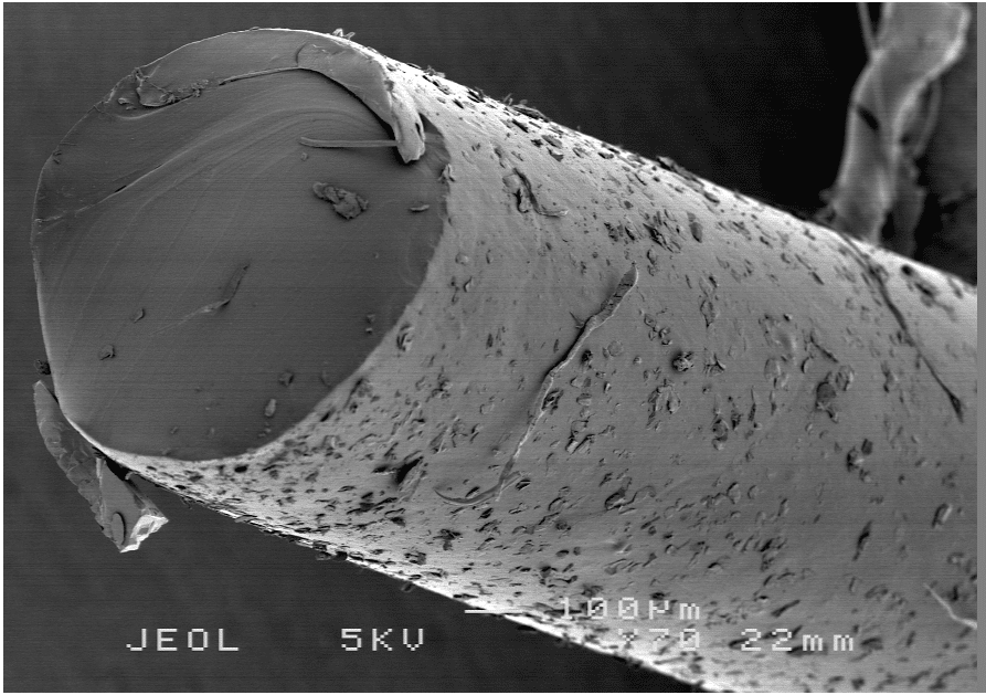 detailed electron microscopic image a brow suspension material