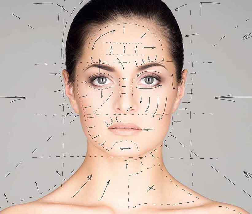 Woman with surgical markings on face