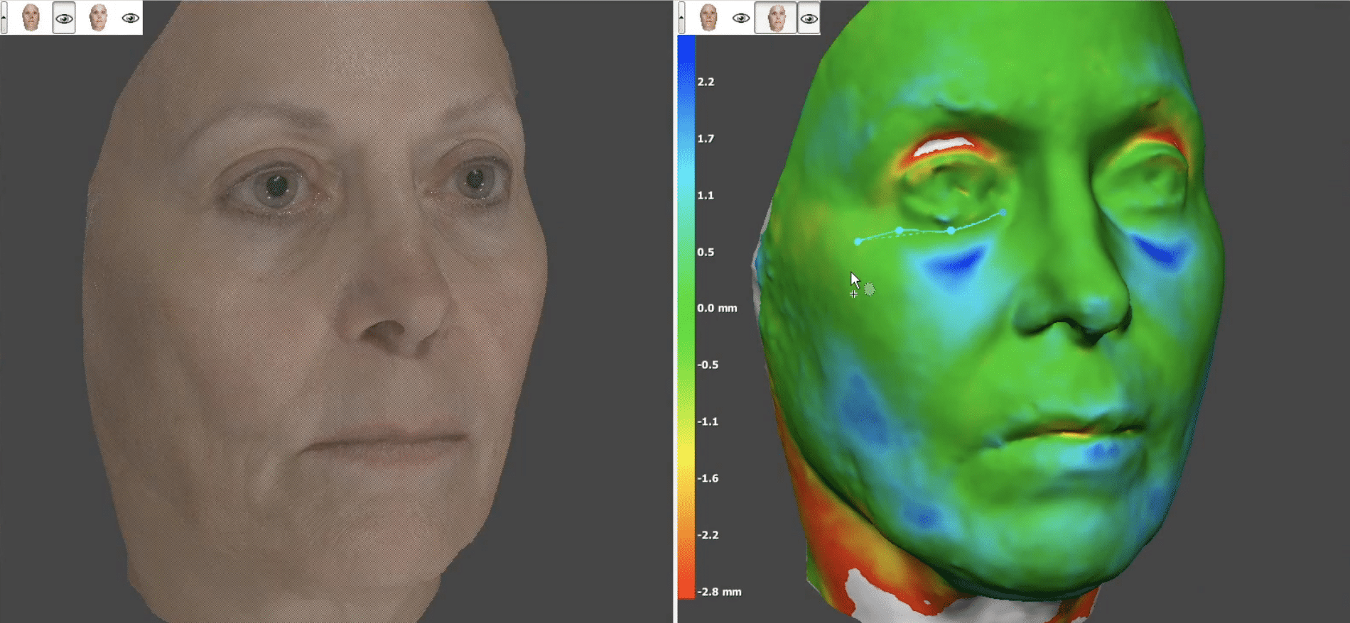 3D Facial Scanning Before Cosmetic Surgery