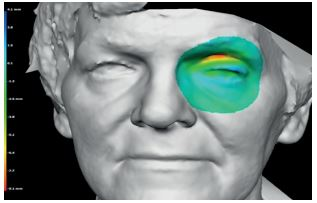 3D Facial Imaging To Manage Sight Loss
