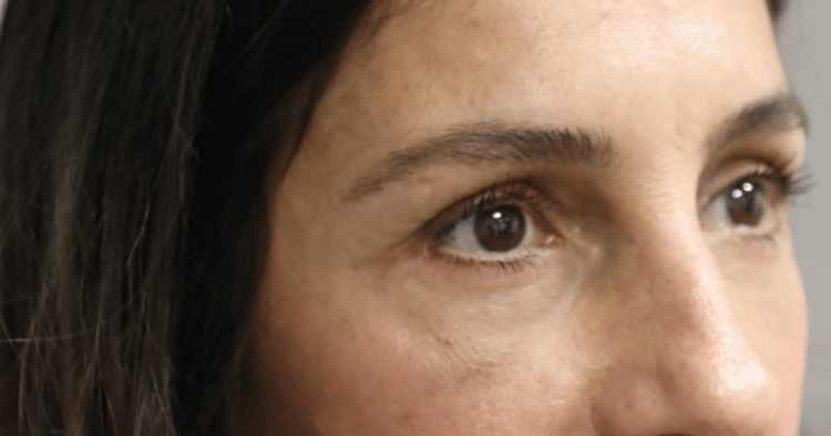 After Revision blepharoplasty