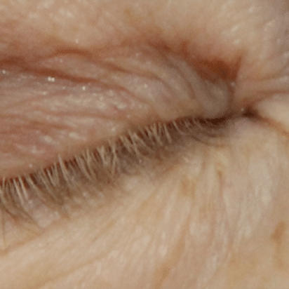 Blepharoplasty | Eyelid Reduction Surgery By A Leading