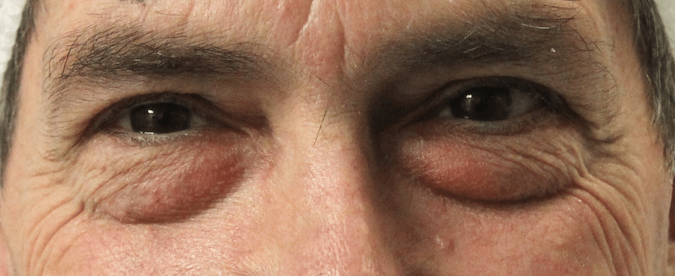 Before Lower lid blepharoplasty (front view)