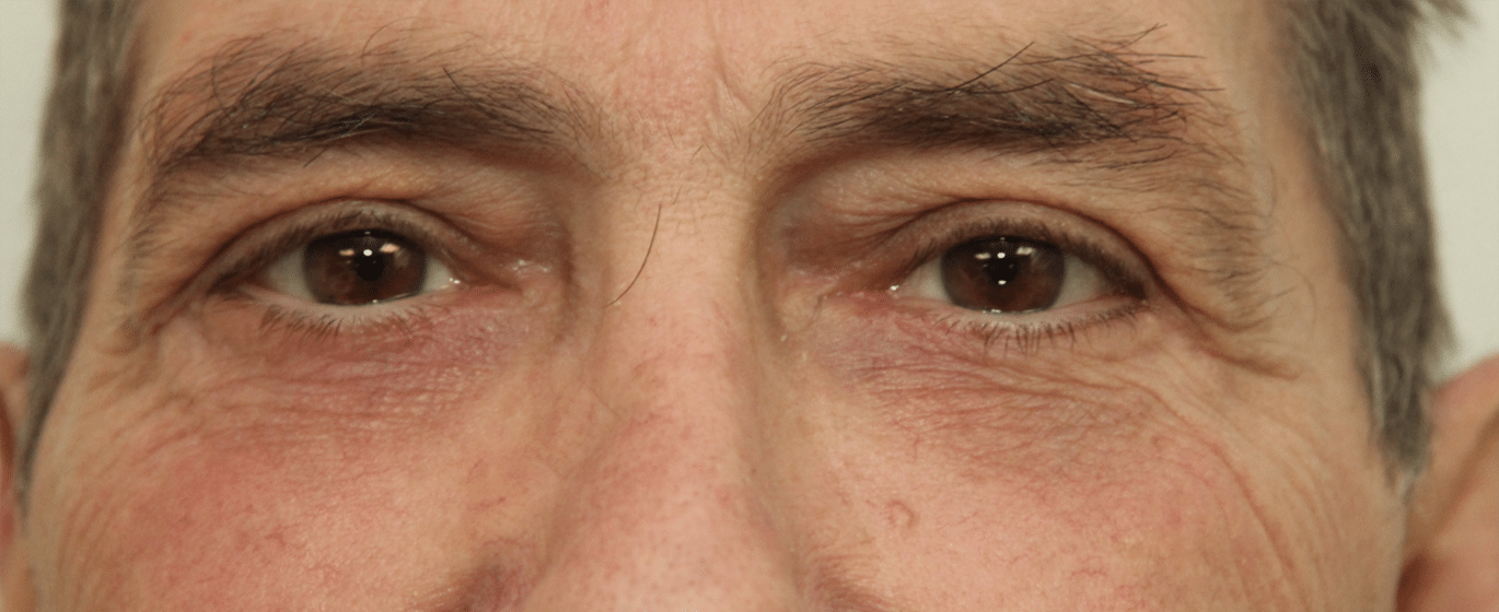 After Lower lid blepharoplasty (front view)