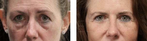 Before and After Blepharoplasty Plus - Lower lid blepharoplasty with midface lift and fat transfer