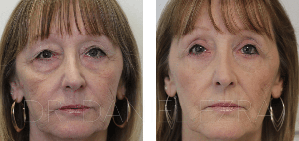 Before and After Blepharoplasty Plus - Upper and Lower Eyelid Blepharoplasty, Midface Lift, Fat Transfer
