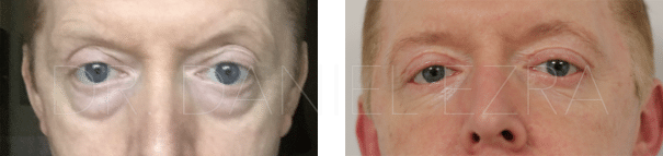Before and After Blepharoplasty Plus - Upper and Lower Eyelid Transconjunctical Blepharoplasty and A Full Face Fat Transfer