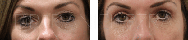 Before and After Blepharoplasty Plus - Upper lid blepharoplasty with browpexy
