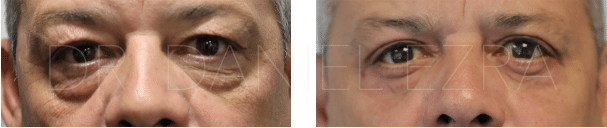 Before and After Blepharoplasty plus - Lower Lid blepharoplasty + Midface lift