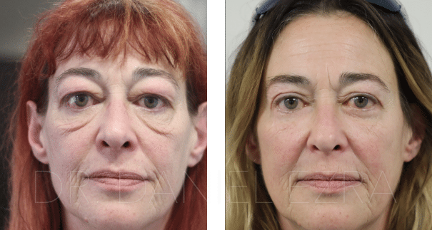 Before and After Blepharoplasty plus - Upper and Lower Blepharoplasty with midface lift