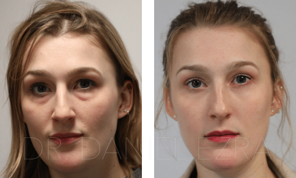 Before and After Lower Lid Transconjunctival Blepharoplasty