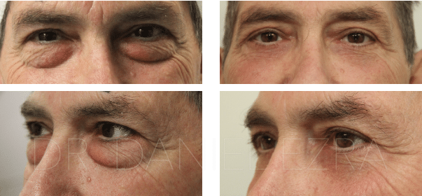 Before and After Lower lid blepharoplasty profile 1