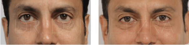 Before and After Revision blepharoplasty profile 2