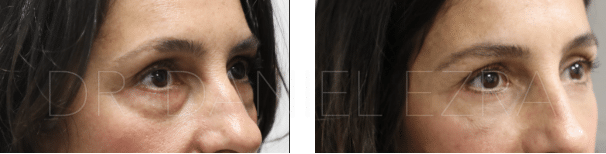 Before and After Revision blepharoplasty