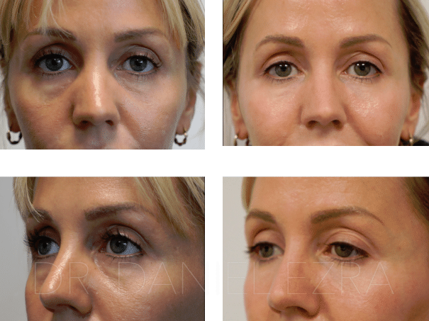 Before and After Tear Trough Fillers profile 1
