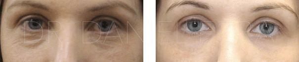 Before and After Tear Trough Fillers profile 2