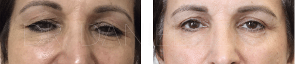 Before and After Upper Lid Blepharoplasty and Ptosis Correction