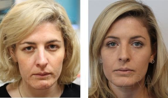 Blepharoplasty plus