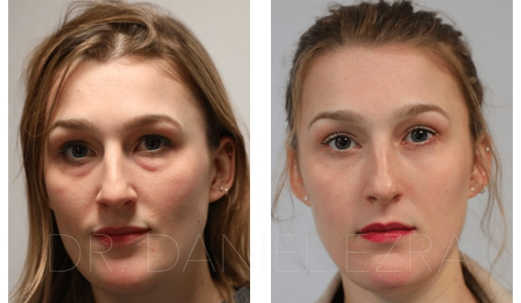 blepharoplasty before and after woman