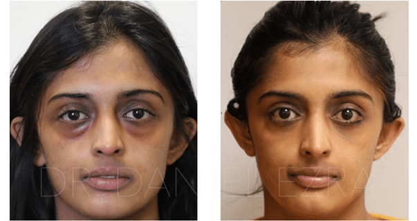 blepharoplasty before and after portrait