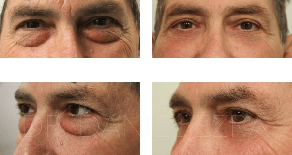 blepharoplasty before and after closeup