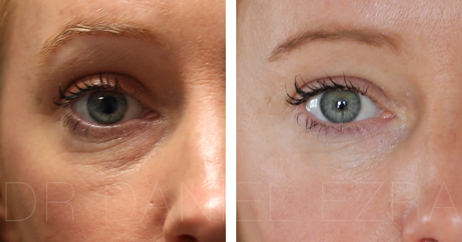 Lower lid blepharoplasty before and after