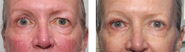 Revision blepharoplasty before and after