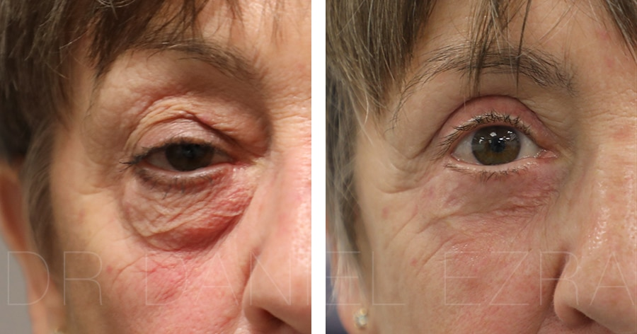 Blepharoplasty plus before and after