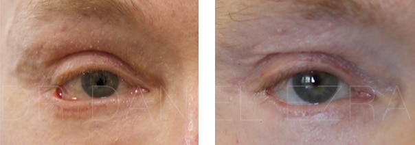 Blepharoplasty revision before and after