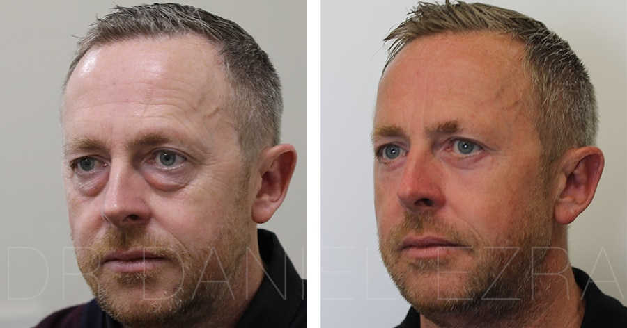 eyelid surgery before and after man