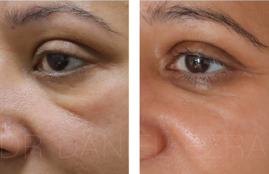 endolift-pre-and-post