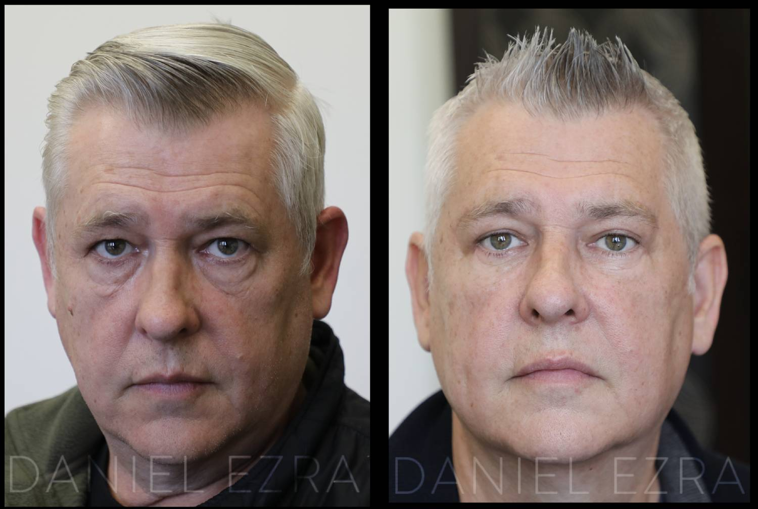 before and after blepharoplasty man